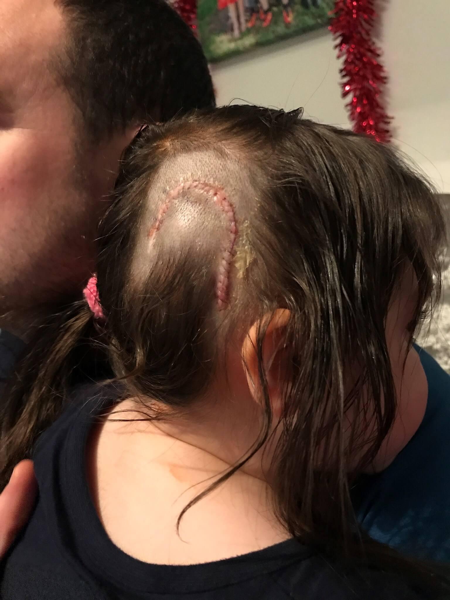 Lyla's surgery scars