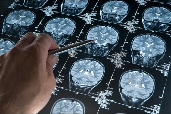 News on ATRT, DIPG, GBM – just three of over 120 types of brain tumour