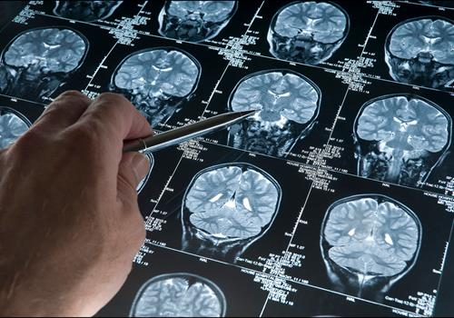 News on ATRT, DIPG, GBM – just three of over 120 types of brain tumour – our worldwide research update
