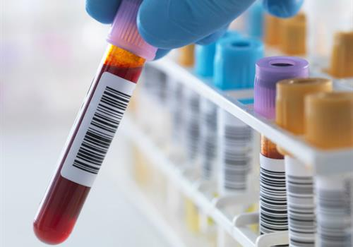 Blood tests for early cancer detection