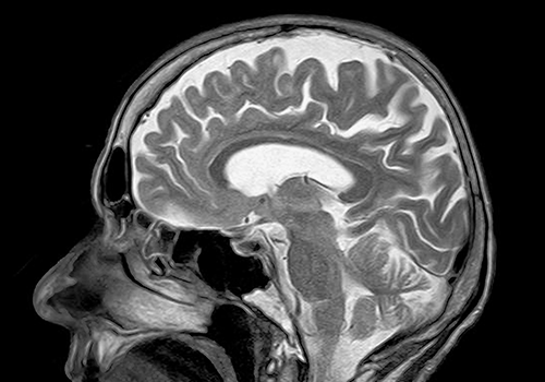 Clinical collaboration aimed at improving treatments for patients diagnosed with glioblastoma announced
