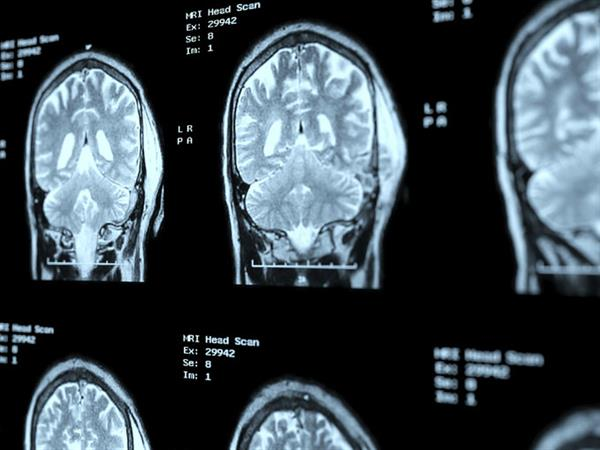 New study identifies 10 subgroups of paediatric gliomas