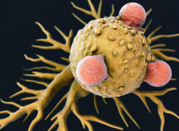 Poliovirus therapy kills off cancer cells, unmasks them to the body's defences and stops tumour growth