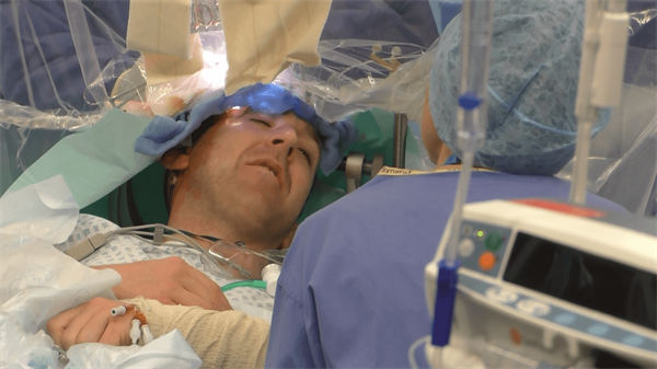 Patients share their stories of awake craniotomy